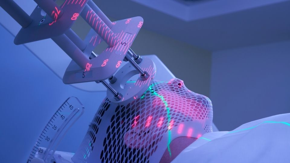 radiotherapy1 - Radiotherapy side effects on tonsil and other oral cancers