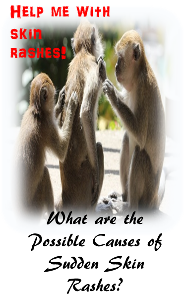 skin itch monkeys - Possible Causes of Sudden Skin Rashes