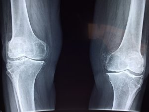 knee 300x225 - Can acupuncture cure bow legs or knocked knees?