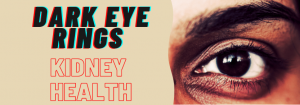 darkeyering 300x105 - Dark circles in the eyes and connection to your kidney health