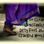 cracked heels 150x150 - How to Clean Constantly Dirty Feet and Cracked Heels