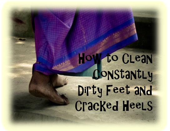 cracked heels - How to Clean Constantly Dirty Feet and Cracked Heels