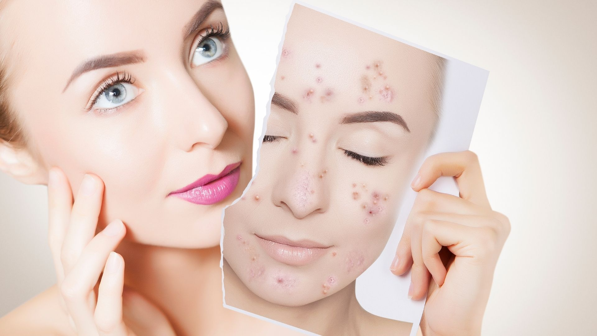 woman acne - A much cheaper alternative for Acne- stop being picked on