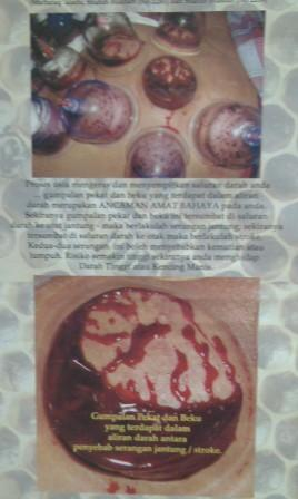 Acucupping1