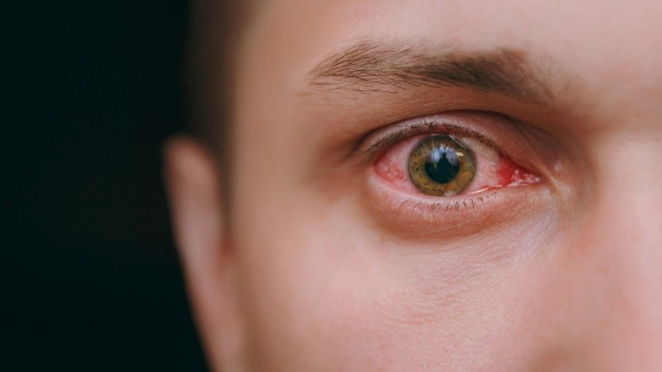 eye conjunctivitis - Inflammed eyes or conjunctivitis- someone got on your nerves?