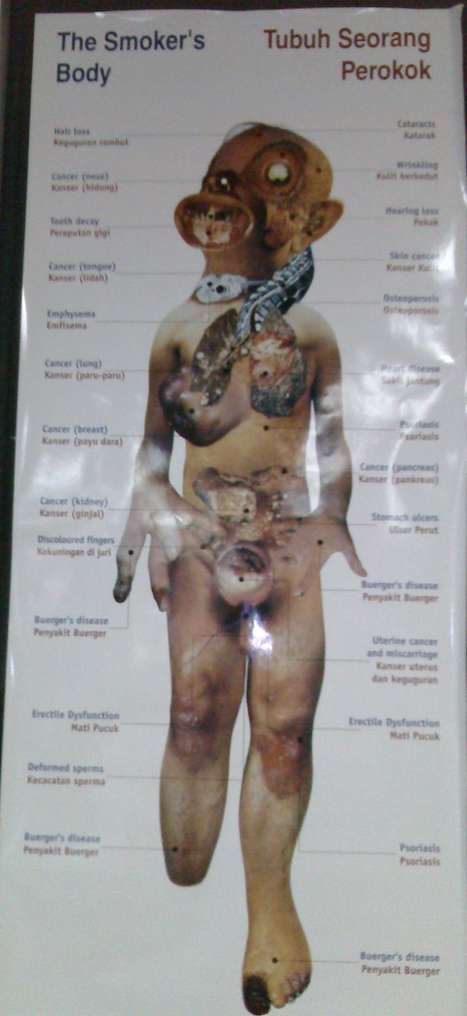 Anatomy of a smoker's body