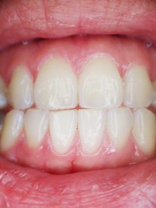 teeth gums 225x300 - Cure chronic gum and teeth conditions like periodititis with a simple ancient exercise