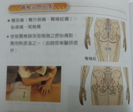 wpid Pointtherapy buttocks - Origin Point Medicine treatment to reduce pain in Ipoh, Perak