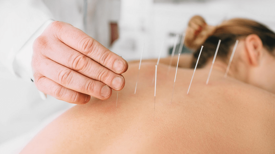 acupuncture1 - My first experience with Acupuncture- very effective