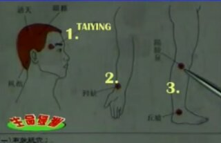 wpid Screenshot 2013 08 09 23 53 12 - Gua Sha for headaches and migraine- video and diagrams