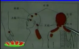 wpid Screenshot 2013 08 09 23 55 24 - Gua Sha for headaches and migraine- video and diagrams
