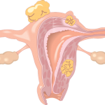 Endometriosis and fibroids with connection to co-dependancy/divorce
