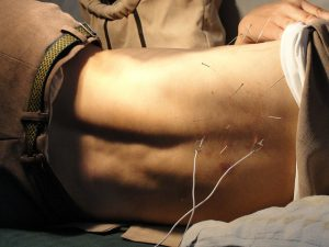 acupuncture 300x225 - Lower back pain reduced but pain seemed to spread elsewhere