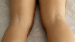 acupuncture knockknees 300x169 - Can acupuncture cure bow legs or knocked knees?