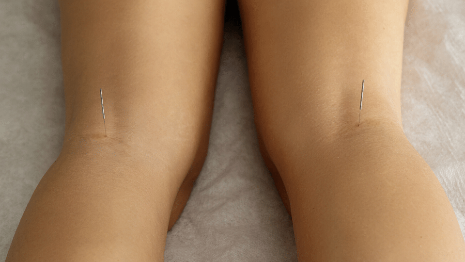 acupuncture knockknees - Can acupuncture cure bow legs or knocked knees?