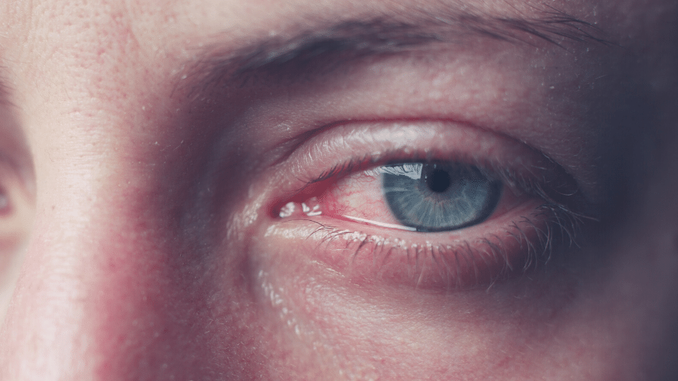 eye cry - Archives