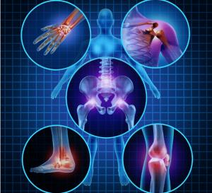 health category arthritis 300x273 - Welcome
